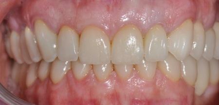 riabilitazione completa superiore e inferiore con ceramiche integrali e faccette